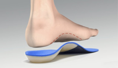 Orthotic Devices